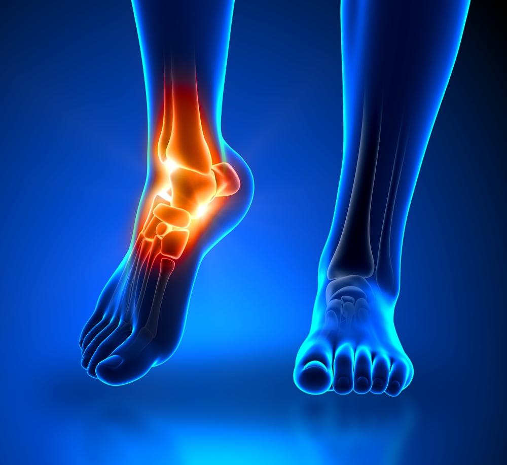 a lábak kötőszövetének gyulladása ha nem kezeli az artrózist