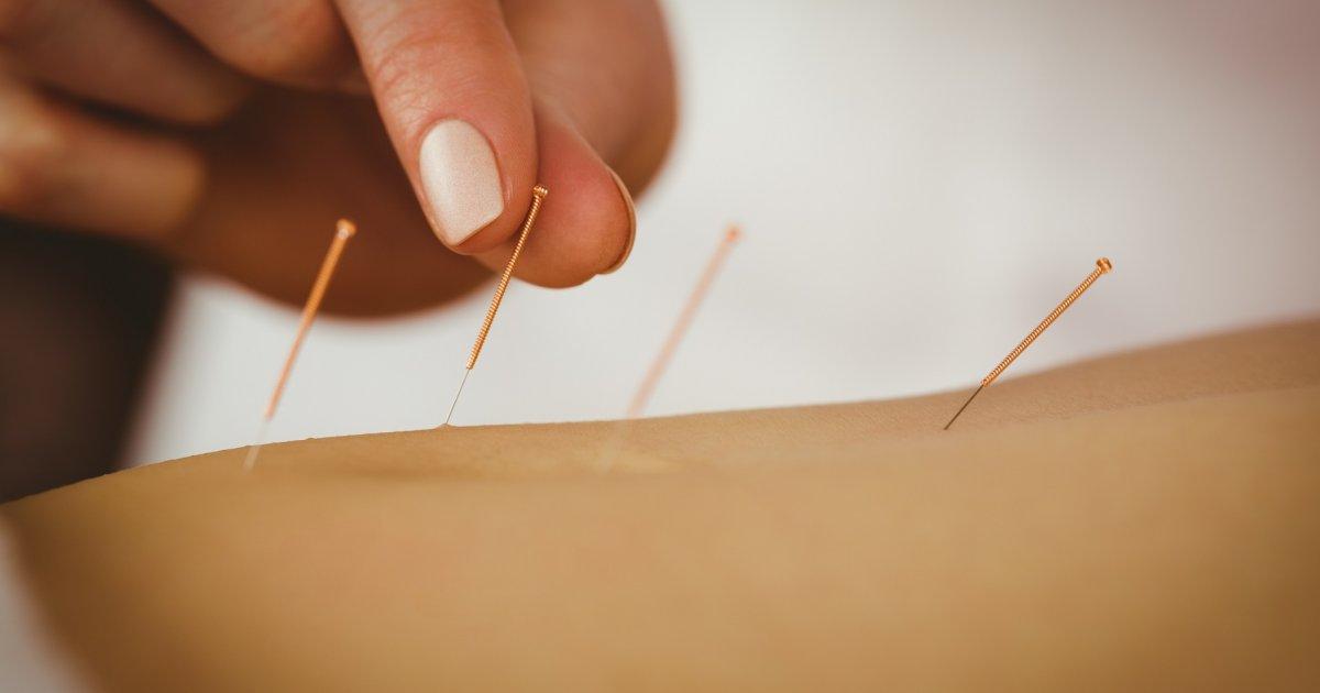 akupunktúra az ízületi ízületi gyulladás kezelésében glükózamin-kondroitin komplex, amelyre vonatkozik