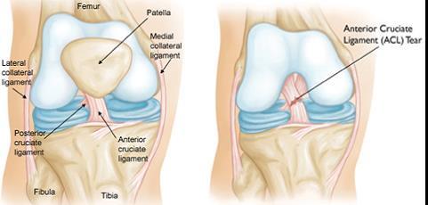 Térdízületi gyulladás (artritisz) típusai és kezelésük