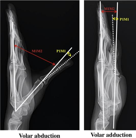 milyen fájdalmat okozhatnak a csontok és ízületek fájdalom a lábán az ízületben, mit kell tenni