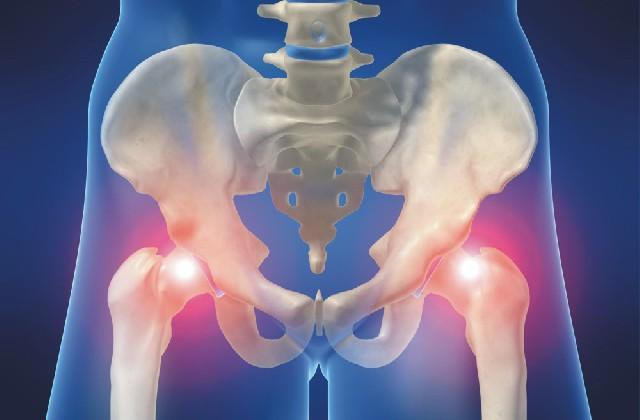 fórum a csípőízület artrózisának kezelésére térdízületek fájdalom
