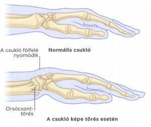 áttekintés az artrózis sóval történő kezeléséről tengeri só artrózisának kezelése