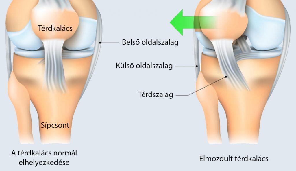 térd törés helyreállítása térdízület betegséget okoz