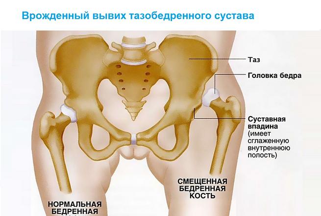 Csípőízület veleszületett diszlokációja felnőtteknél,