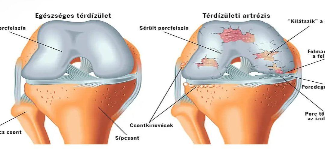 a jobb térdízület fájdalma varrásos fájdalom a csípőízületben