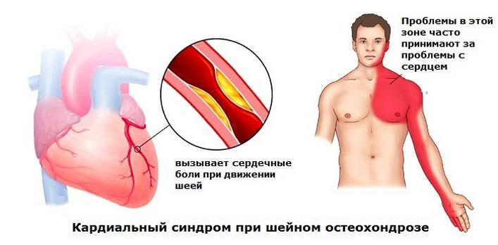 terápiás kenőcsök artrózis kezelésében nyaki kezelés artrózis és osteoarthritis