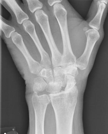 Mi a különbség? Arthralgia – Arthritis – Arthrozis