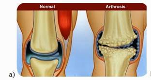 Hogyan roncsolja az osteoarthrosis (OA) a térdet? - Reviscon