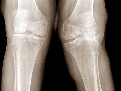 a lábak nagy ízületeinek betegségei