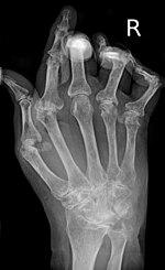 Az osteoarthritis deformálódásának okai és jelei - tünetek, diagnózis, betegség mértéke és kezelése
