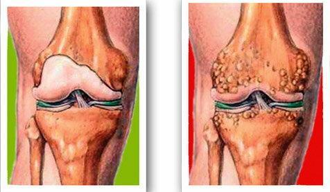 mentő a térdízület fájdalma érdekében a nordic walking térd artrózisával