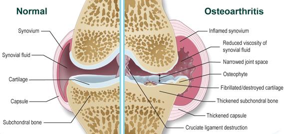 Az ízületi eredetű betegségekről - HáziPatika