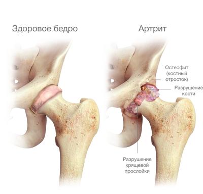 mesterséges csípőfájdalom
