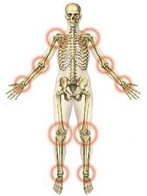 szép gél ízületi fájdalmak kezelésére enyhíti az ízületi gyulladásokat és duzzanatot